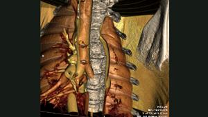 Sanovas Vas Zeppelin CT Scan #2